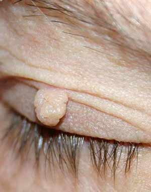 Skin tag on upper eyelid